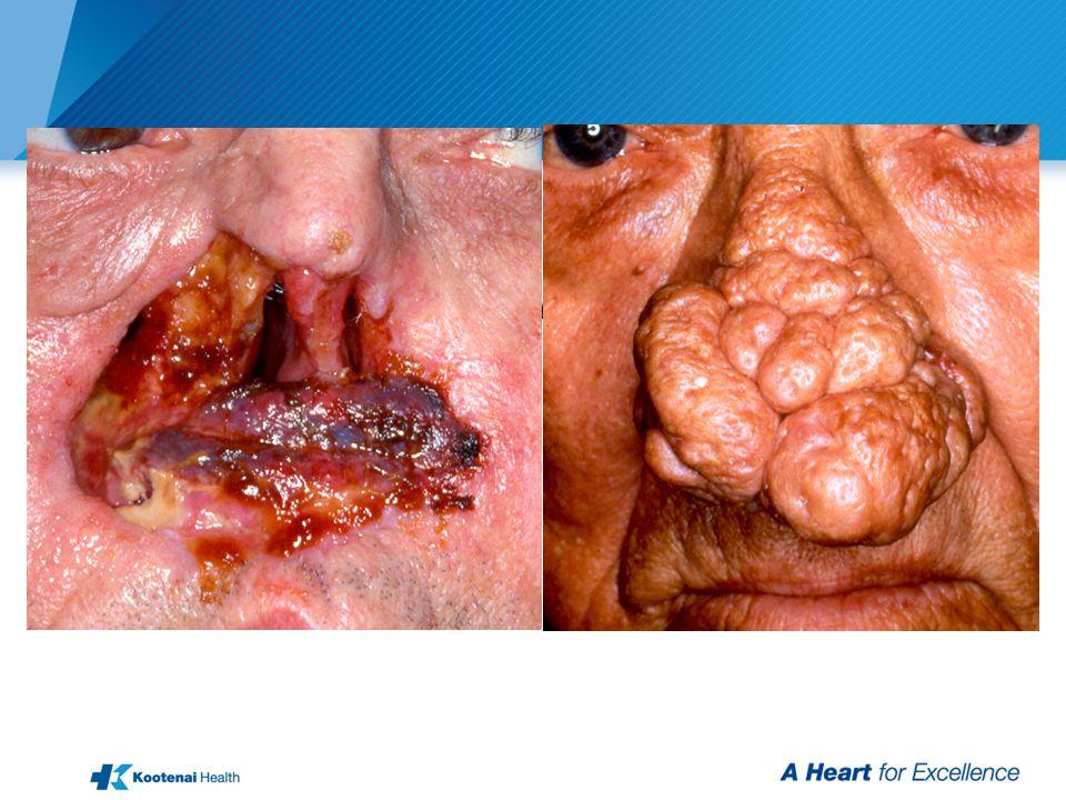 Squamous Cell Carcinoma - Rhinophyma