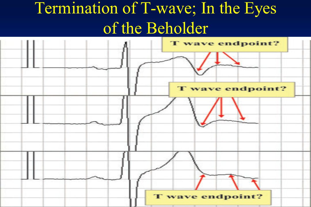 Termination of T-wave; In the Eyes of the Beholder