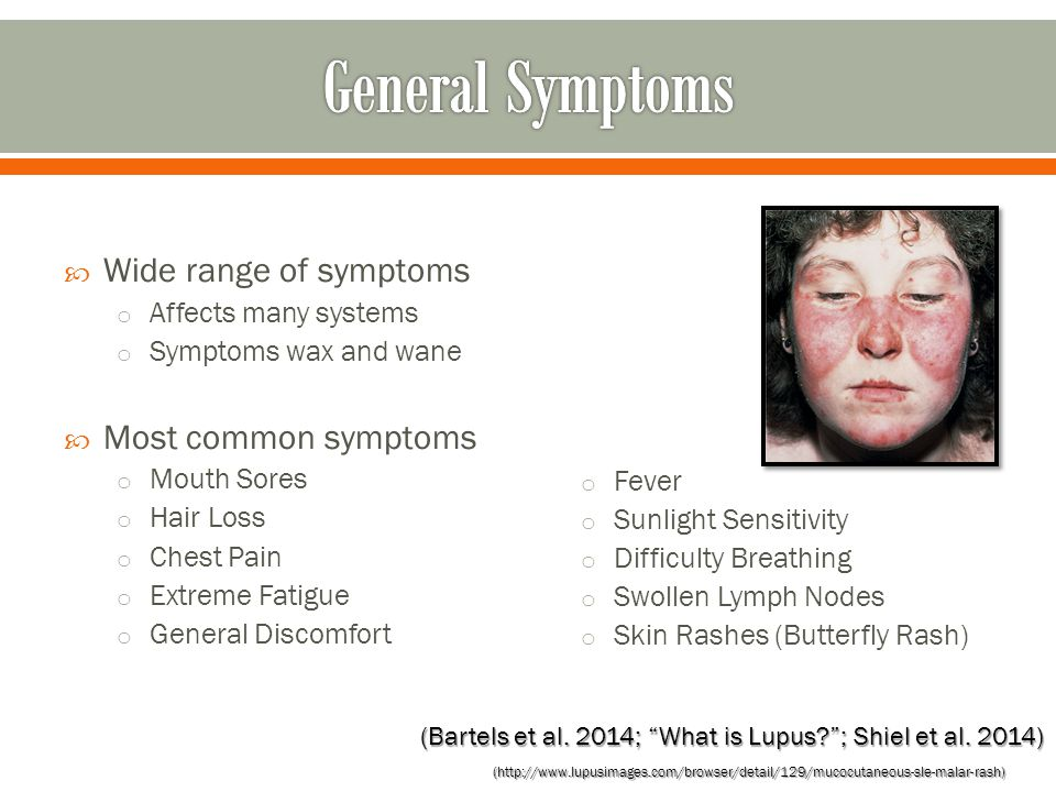  Wide range of symptoms o Affects many systems o Symptoms wax and wane  Most common symptoms o Mouth Sores o Hair Loss o Chest Pain o Extreme Fatigue o General Discomfort o Fever o Sunlight Sensitivity o Difficulty Breathing o Swollen Lymph Nodes o Skin Rashes (Butterfly Rash) (Bartels et al.