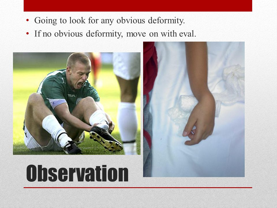Observation Going to look for any obvious deformity. If no obvious deformity, move on with eval.