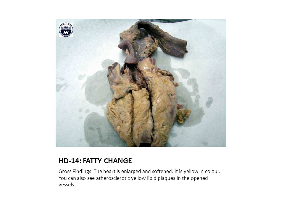 HD-14: FATTY CHANGE Gross Findings: The heart is enlarged and softened.