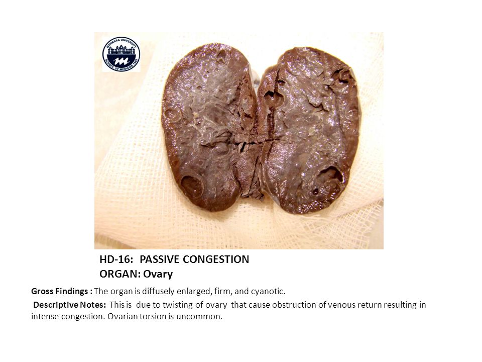 HD-16: PASSIVE CONGESTION ORGAN: Ovary Gross Findings : The organ is diffusely enlarged, firm, and cyanotic.