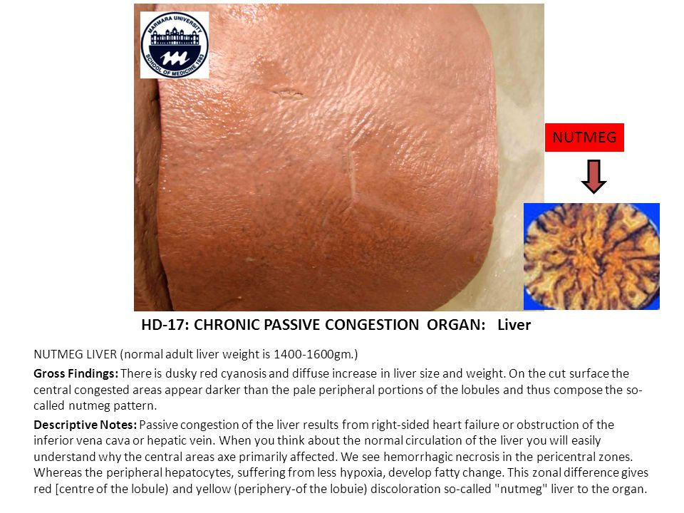 HD-17: CHRONIC PASSIVE CONGESTION ORGAN: Liver NUTMEG LIVER (normal adult liver weight is 1400-1600gm.) Gross Findings: There is dusky red cyanosis and diffuse increase in liver size and weight.