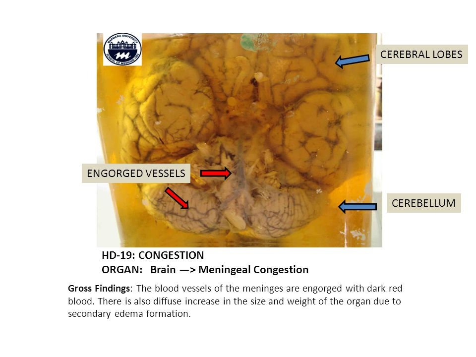 HD-19: CONGESTION ORGAN: Brain —> Meningeal Congestion Gross Findings: The blood vessels of the meninges are engorged with dark red blood.