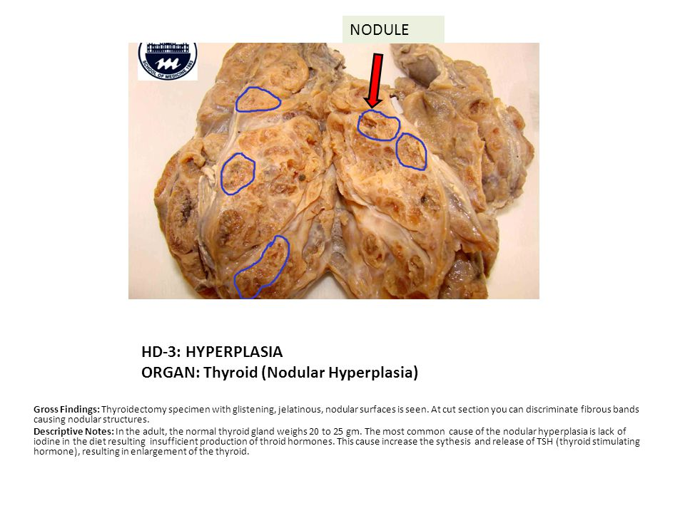 HD-3: HYPERPLASIA ORGAN: Thyroid (Nodular Hyperplasia) Gross Findings: Thyroidectomy specimen with glistening, jelatinous, nodular surfaces is seen.