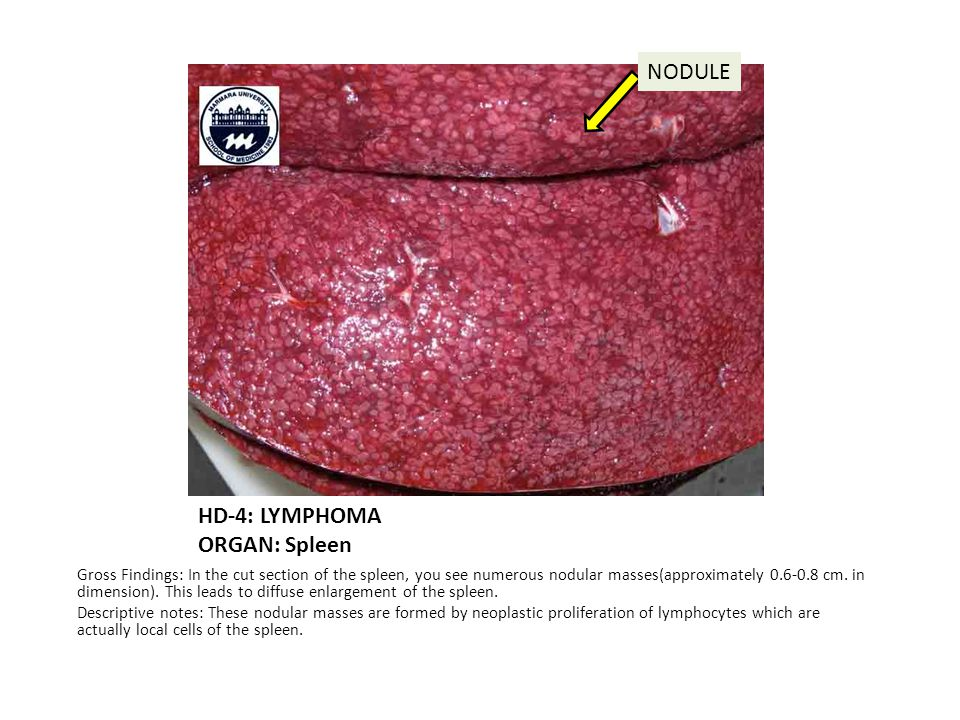 HD-4: LYMPHOMA ORGAN: Spleen Gross Findings: In the cut section of the spleen, you see numerous nodular masses(approximately 0.6-0.8 cm.