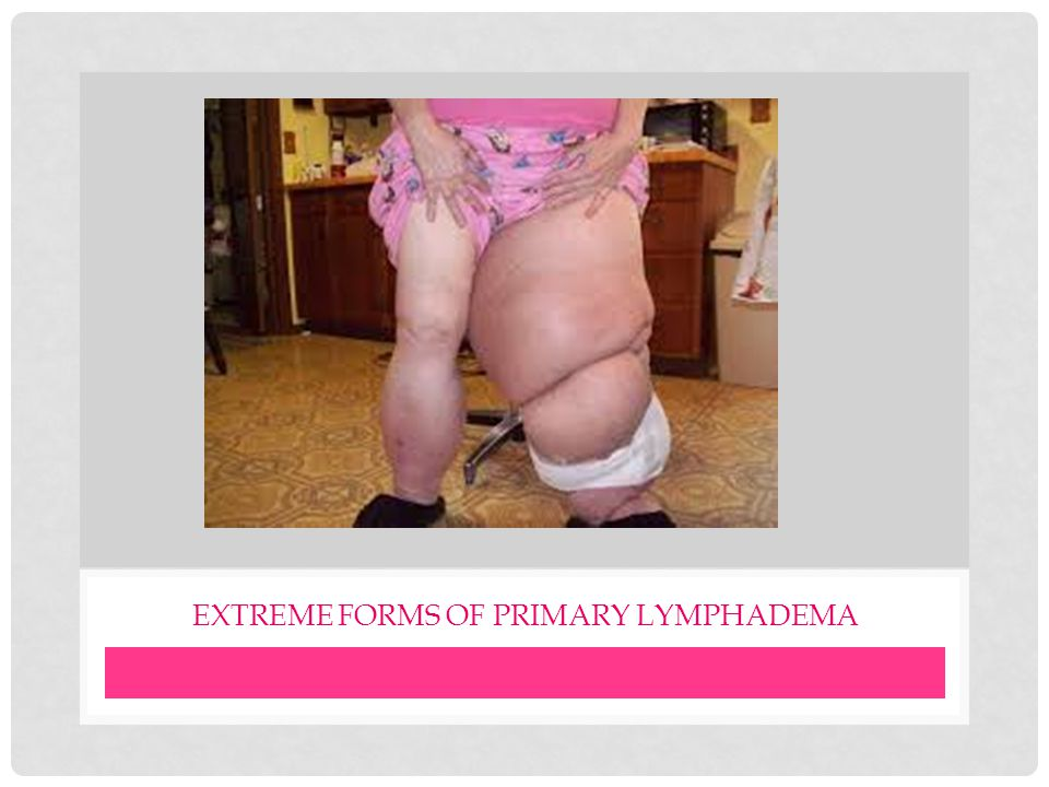 EXTREME FORMS OF PRIMARY LYMPHADEMA