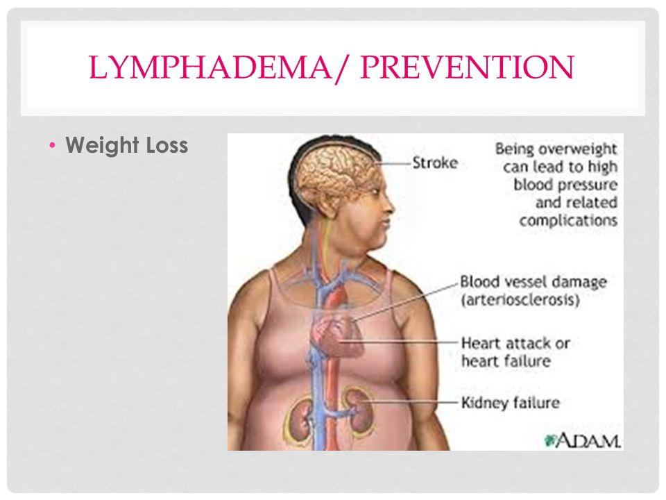 LYMPHADEMA/ PREVENTION Weight Loss