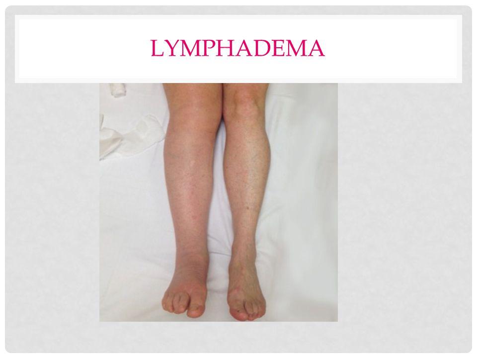 LYMPHADEMA