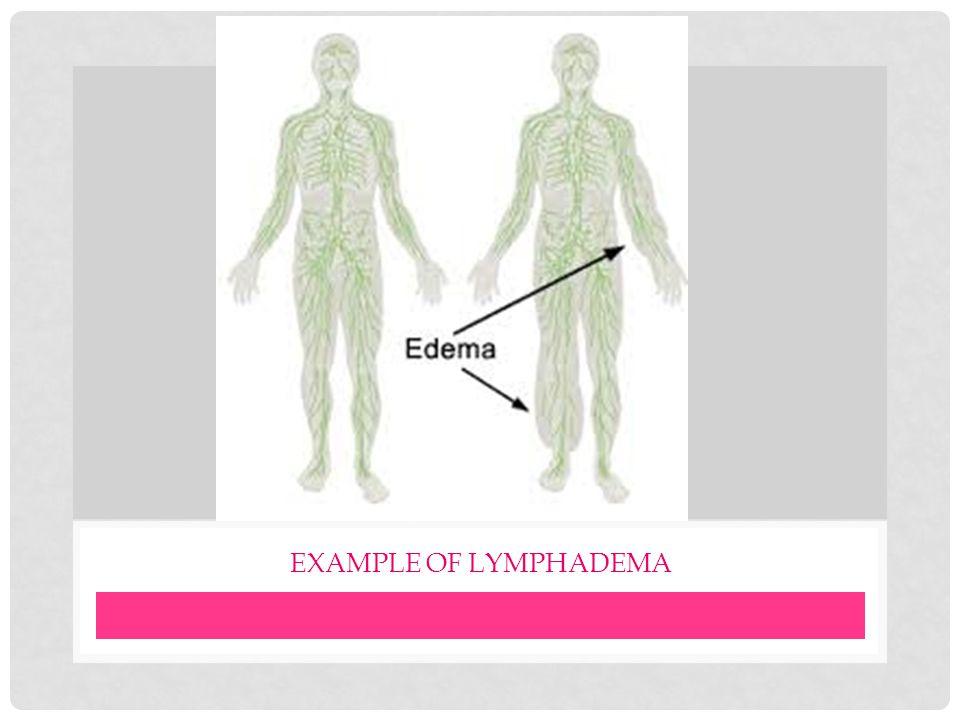 EXAMPLE OF LYMPHADEMA