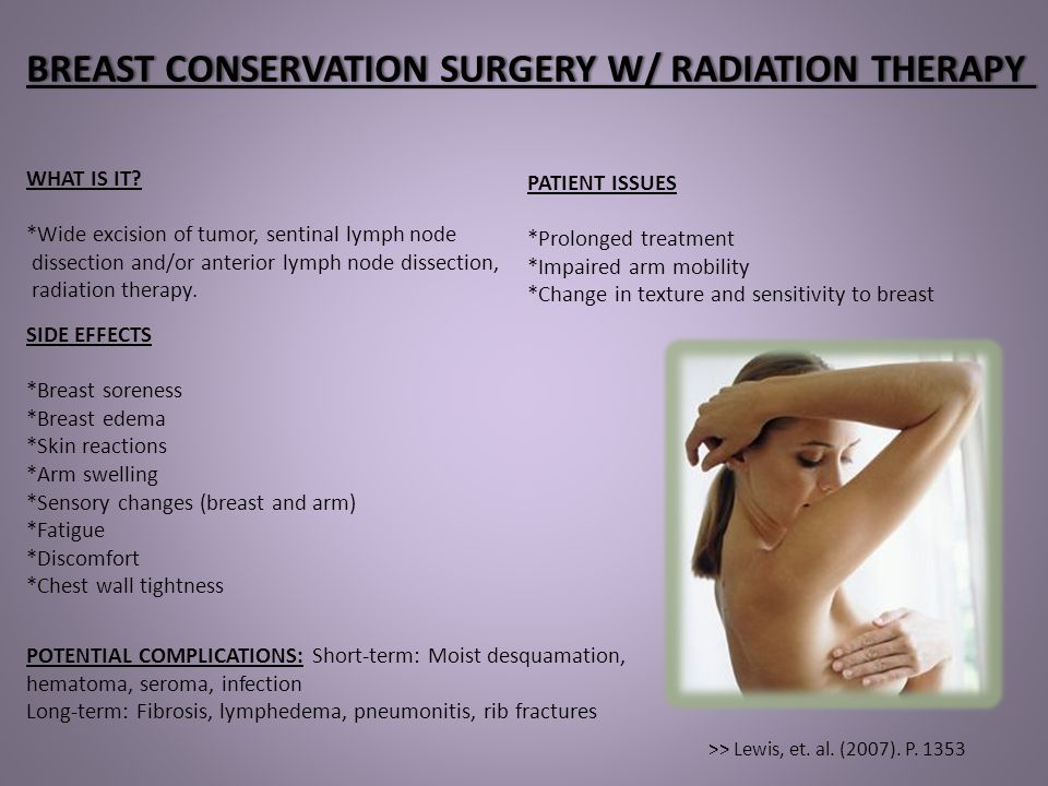 TISSUE EXPANSION & BREAST IMPLANTSTISSUE EXPANSION & BREAST IMPLANTS WHAT IS IT.