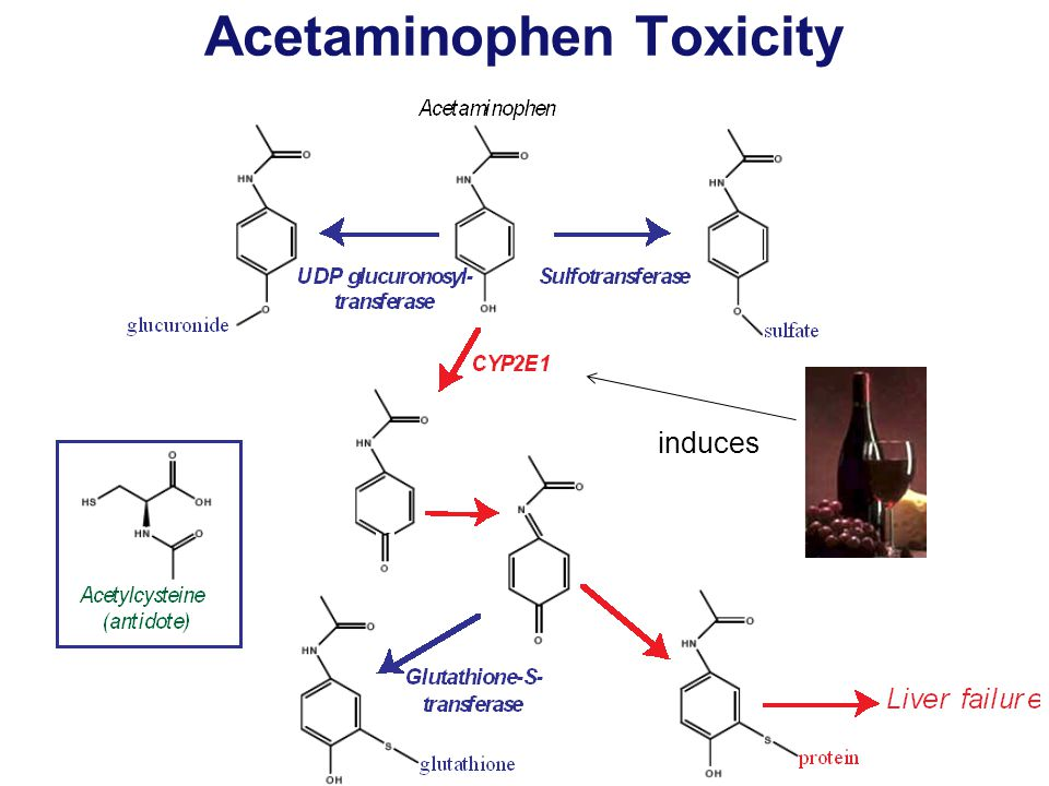Acetaminophen Toxicity induces