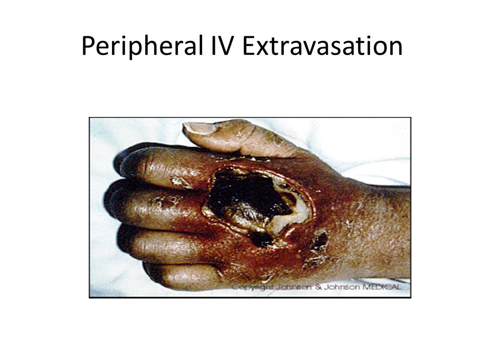 Peripheral IV Extravasation