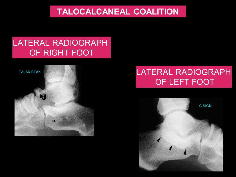 TALOCALCANEAL COALITION LATERAL RADIOGRAPH OF LEFT FOOT LATERAL RADIOGRAPH OF RIGHT FOOT