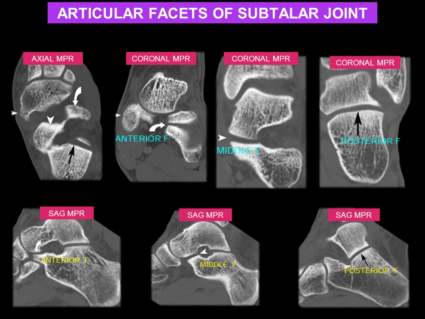 AXIAL MPRCORONAL MPR SAG MPR CORONAL MPR SAG MPR ARTICULAR FACETS OF SUBTALAR JOINT
