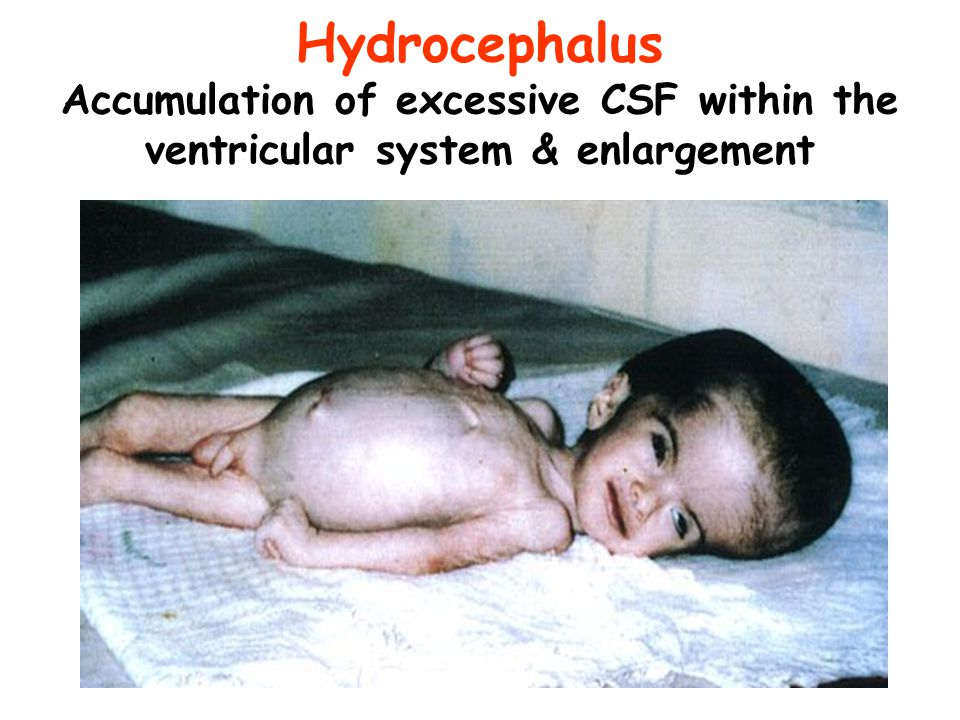 Hydrocephalus Accumulation of excessive CSF within the ventricular system & enlargement