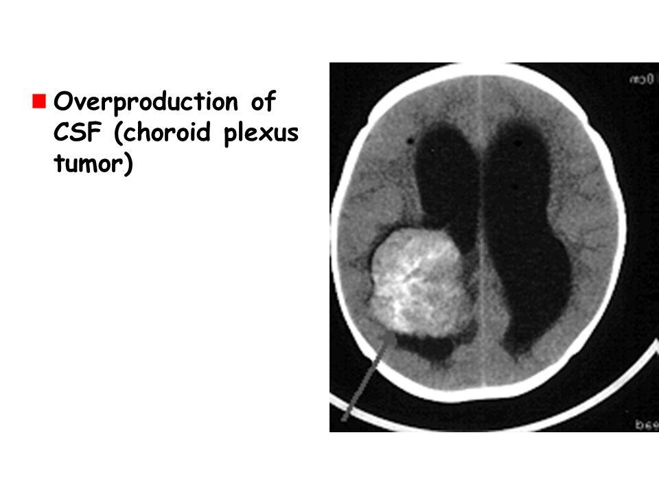 Overproduction of CSF (choroid plexus tumor)