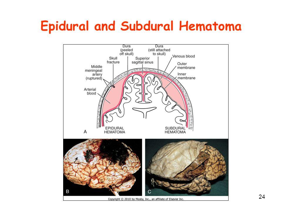 Epidural and Subdural Hematoma 24