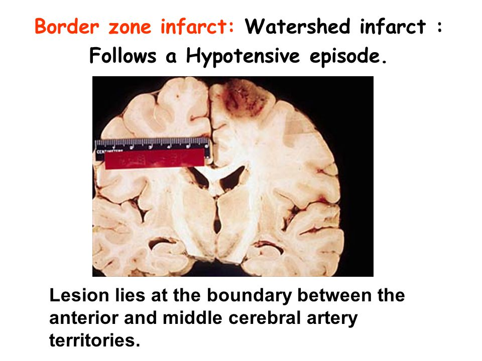 Border zone infarct: Watershed infarct : Follows a Hypotensive episode. Lesion lies at the boundary between the anterior and middle cerebral artery te
