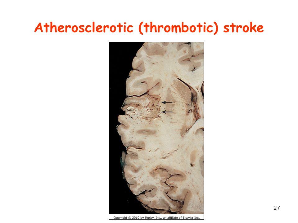 Atherosclerotic (thrombotic) stroke 27
