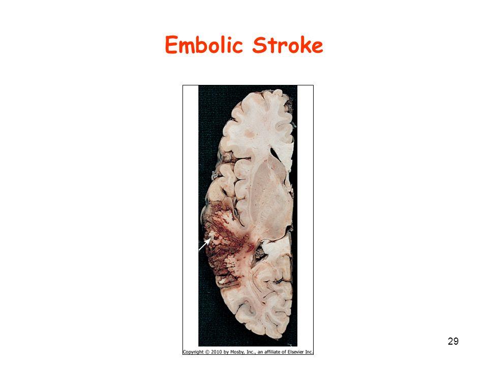 Embolic Stroke 29
