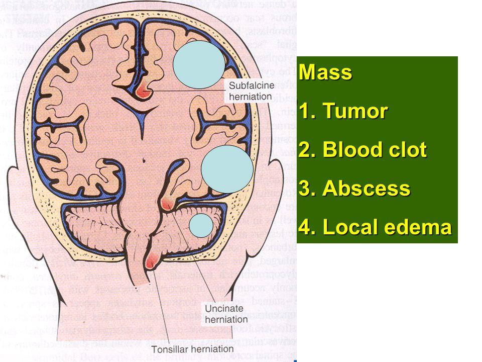 Mass 1.Tumor 2.Blood clot 3.Abscess 4.Local edema S T