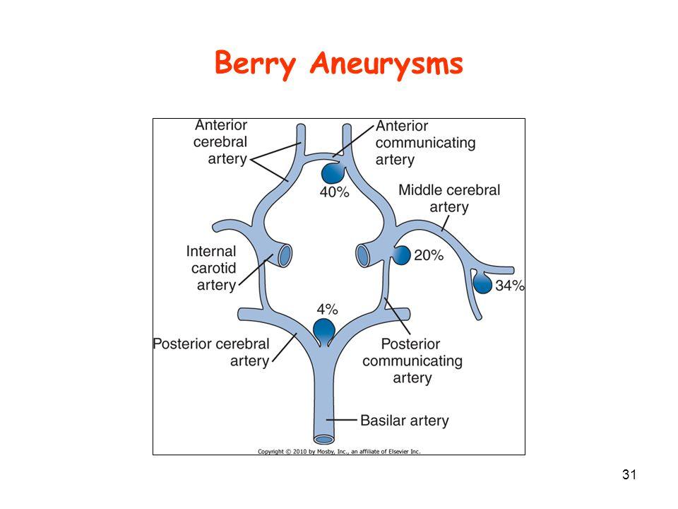 Berry Aneurysms 31