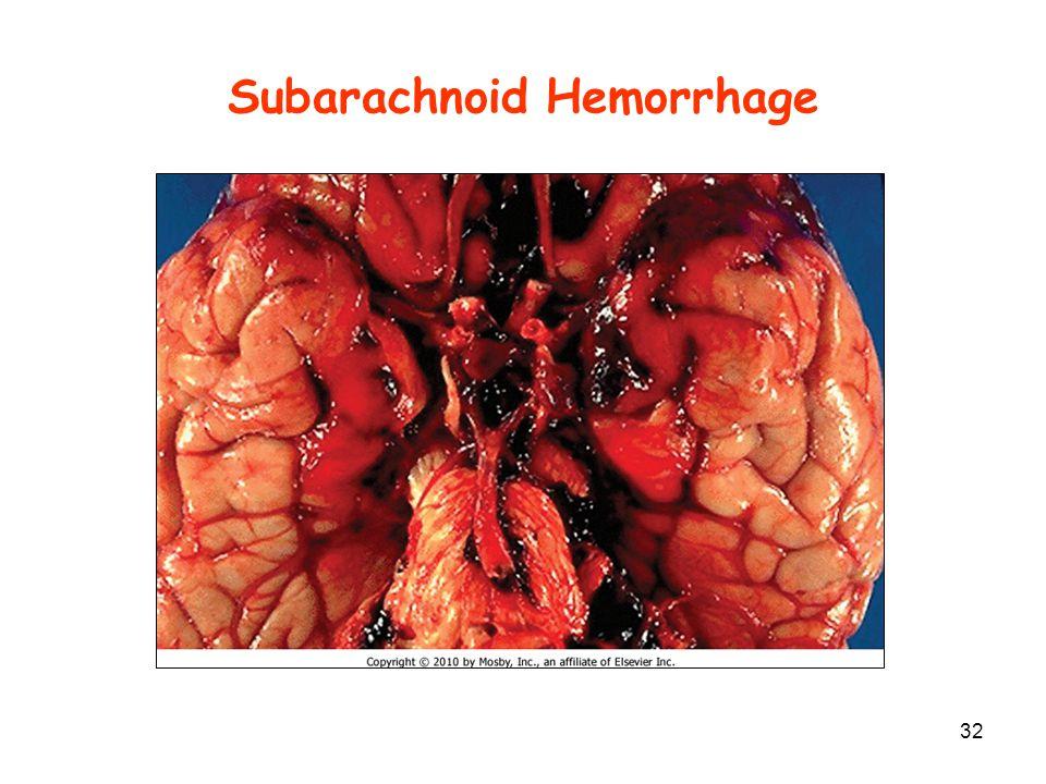 Subarachnoid Hemorrhage 32