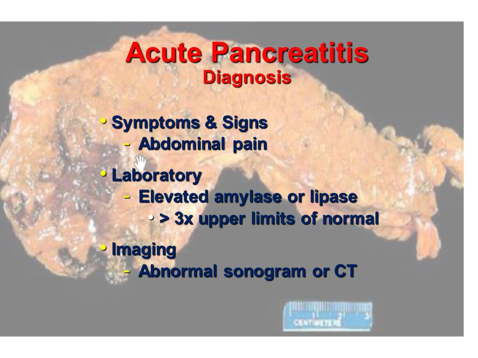 Acute Pancreatitis Differential Diagnosis Choledocholithiasis Choledocholithiasis Perforated ulcer Perforated ulcer Mesenteric ischemia Mesenteric isc
