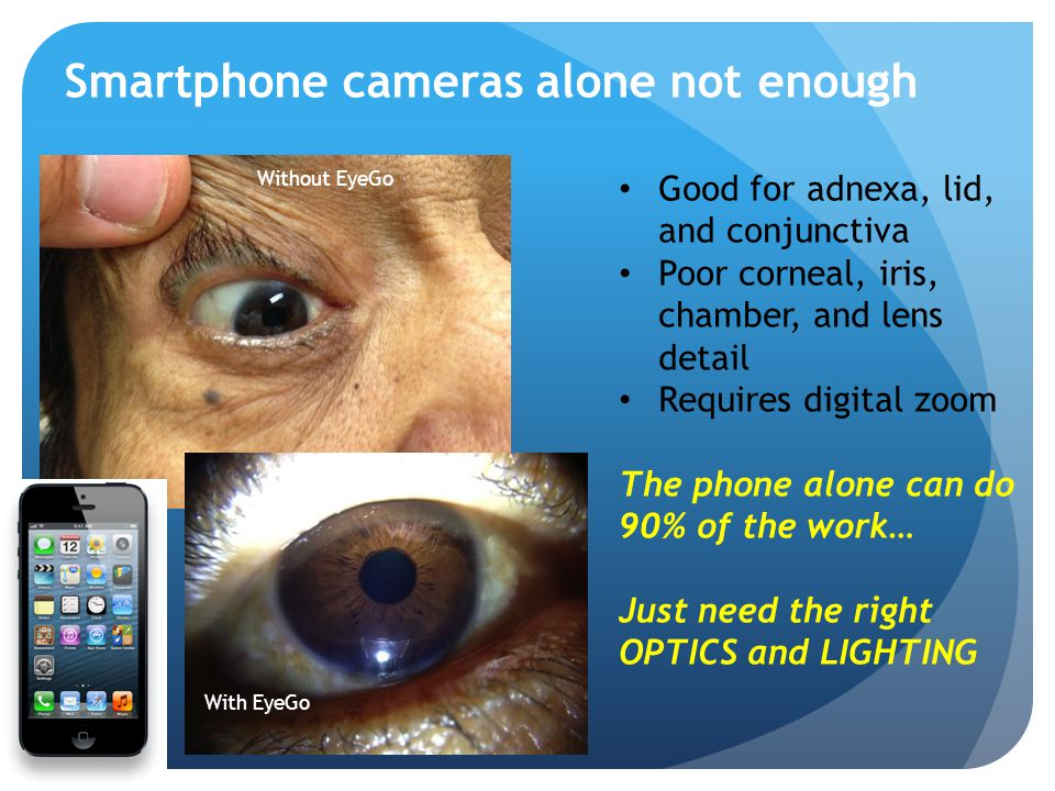 Smartphone cameras alone not enough Good for adnexa, lid, and conjunctiva Poor corneal, iris, chamber, and lens detail Requires digital zoom The phone