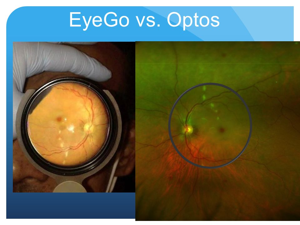 EyeGo vs. Optos