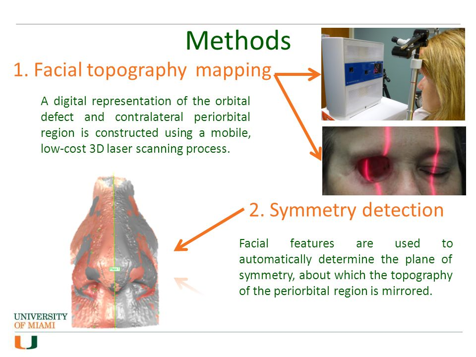 Methods 1. Facial topography mapping A digital representation of the orbital defect and contralateral periorbital region is constructed using a mobile