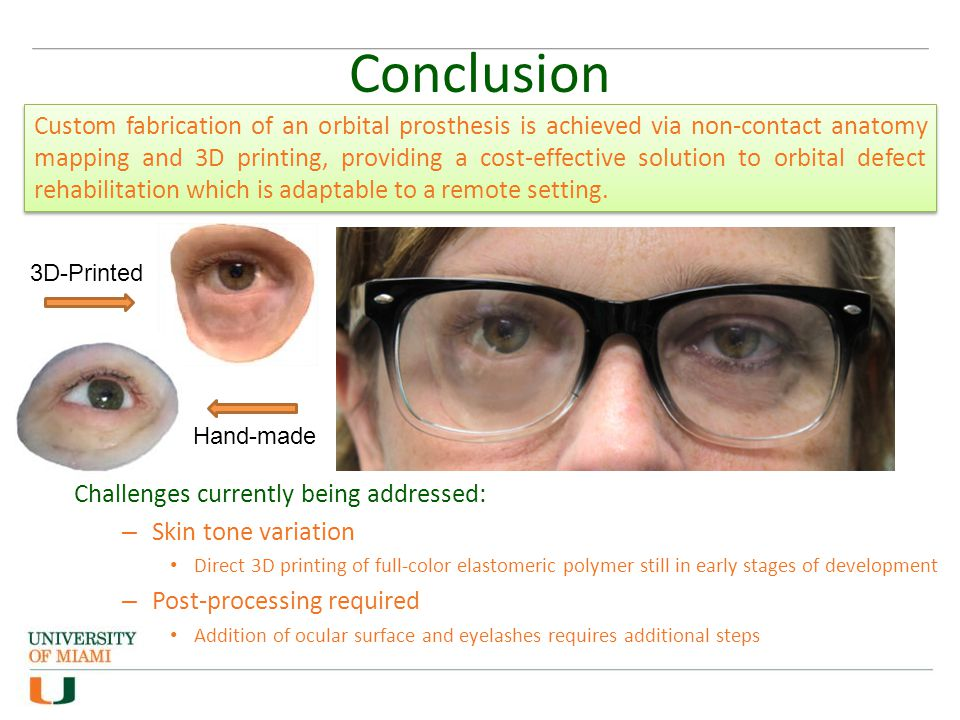 Conclusion Challenges currently being addressed: – Skin tone variation Direct 3D printing of full-color elastomeric polymer still in early stages of d