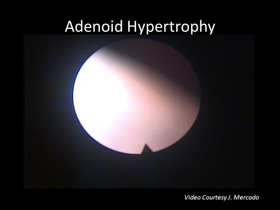 Adenoid Hypertrophy Video Courtesy J. Mercado