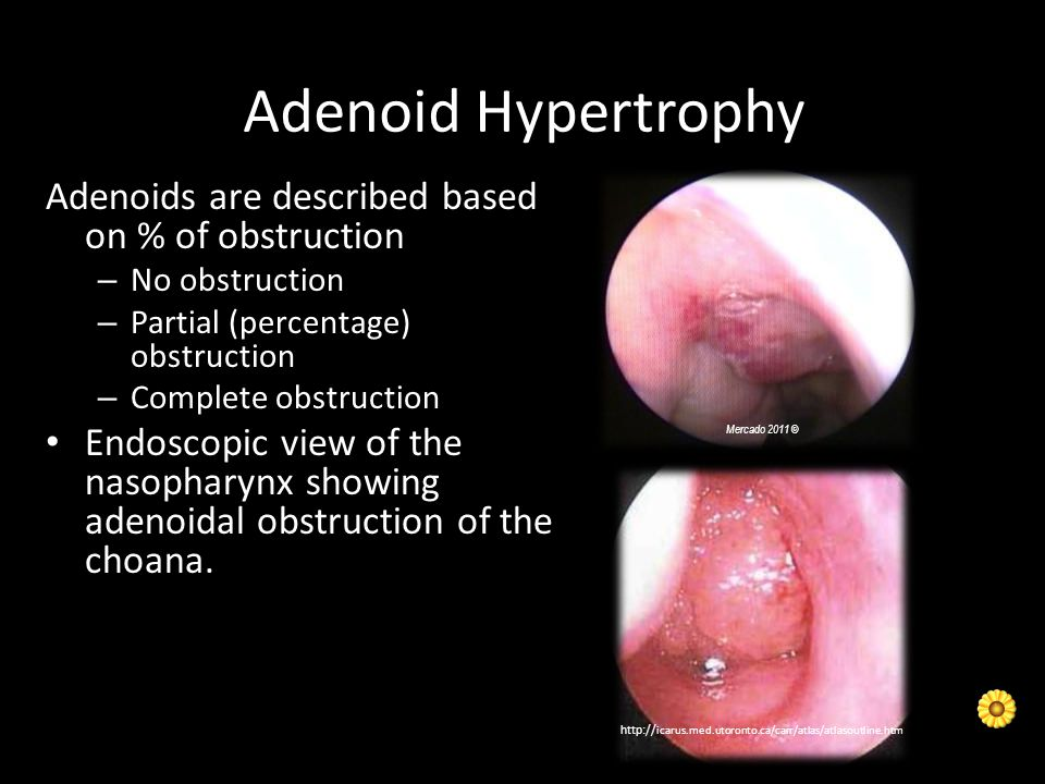 Adenoid Hypertrophy Adenoids are described based on % of obstruction – No obstruction – Partial (percentage) obstruction – Complete obstruction Endosc