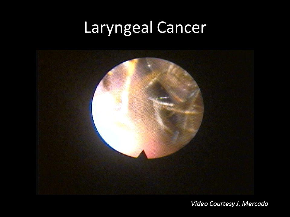 Laryngeal Cancer Video Courtesy J. Mercado