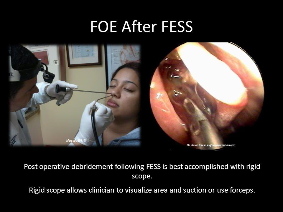 FOE After FESS Mercado 2011 © Dr. Kevin Kavanaugh © www.entusa.com Post operative debridement following FESS is best accomplished with rigid scope. Ri