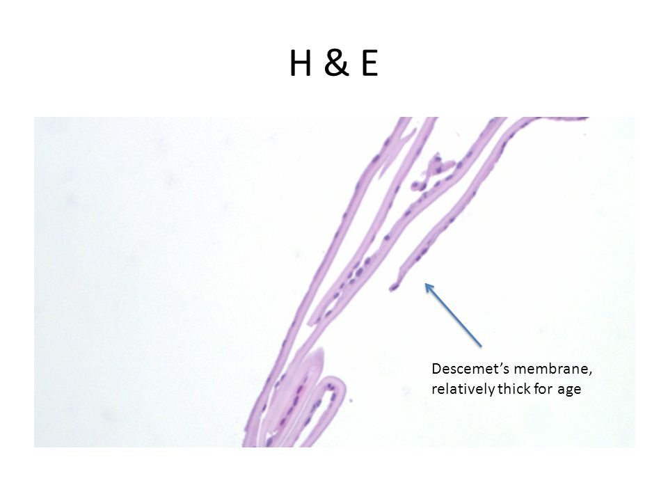 H & E Descemet's membrane, relatively thick for age