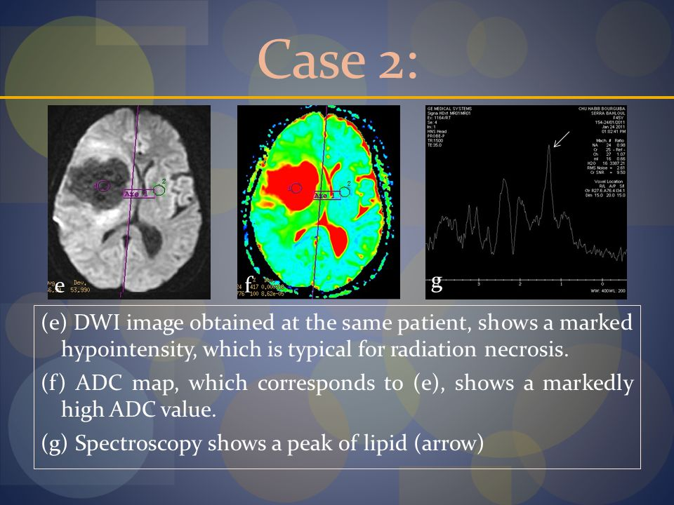 Case 2: (e) DWI image obtained at the same patient, shows a marked hypointensity, which is typical for radiation necrosis.