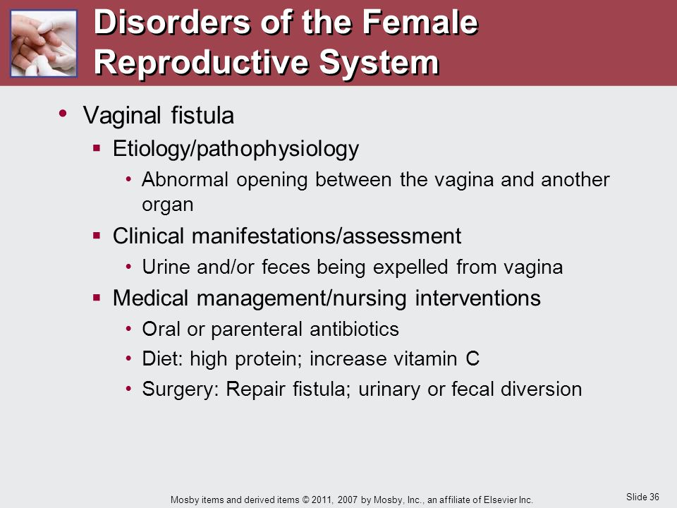 Slide 36 Mosby items and derived items © 2011, 2007 by Mosby, Inc., an affiliate of Elsevier Inc. Vaginal fistula  Etiology/pathophysiology Abnormal
