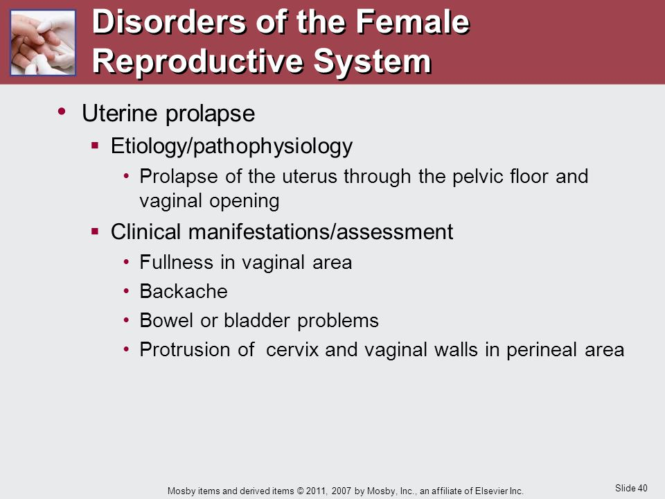 Slide 40 Mosby items and derived items © 2011, 2007 by Mosby, Inc., an affiliate of Elsevier Inc. Uterine prolapse  Etiology/pathophysiology Prolapse