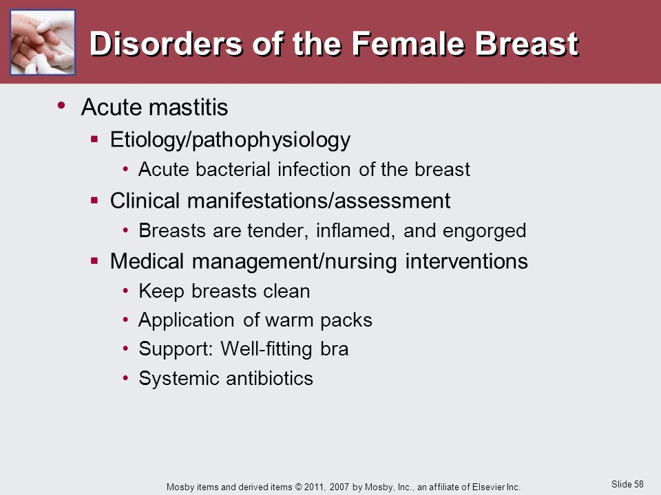 Slide 58 Mosby items and derived items © 2011, 2007 by Mosby, Inc., an affiliate of Elsevier Inc. Disorders of the Female Breast Acute mastitis  Etio