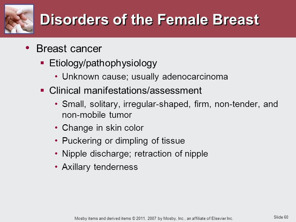 Slide 60 Mosby items and derived items © 2011, 2007 by Mosby, Inc., an affiliate of Elsevier Inc. Disorders of the Female Breast Breast cancer  Etiol