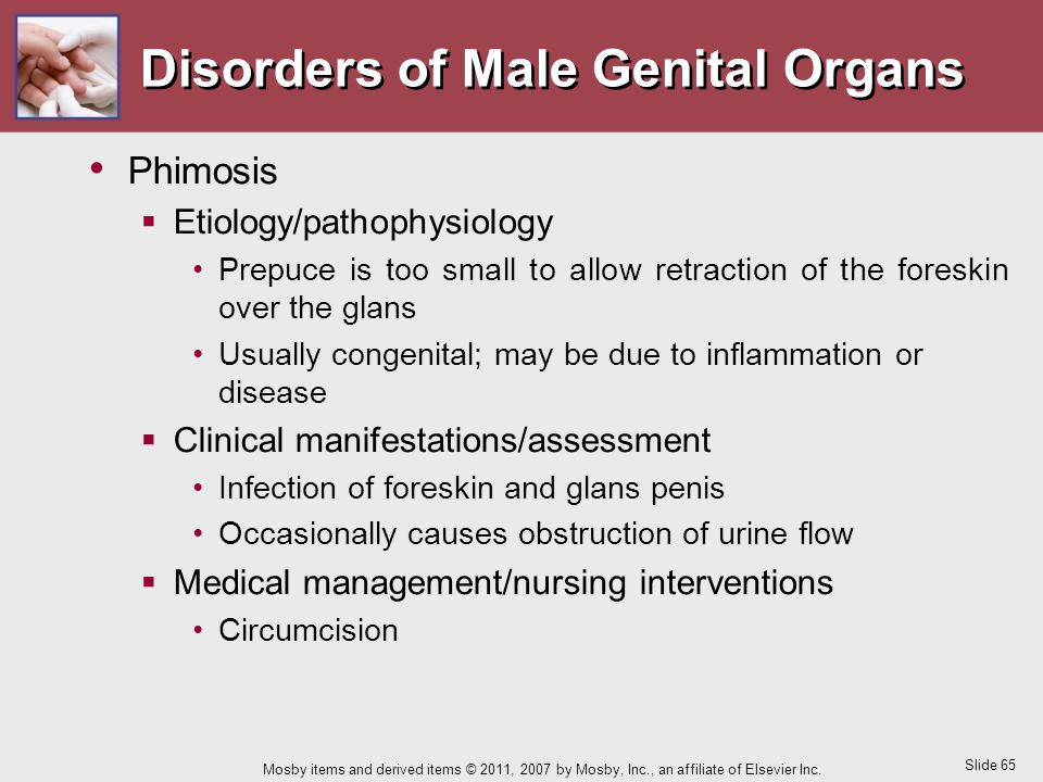 Slide 65 Mosby items and derived items © 2011, 2007 by Mosby, Inc., an affiliate of Elsevier Inc. Disorders of Male Genital Organs Phimosis  Etiology