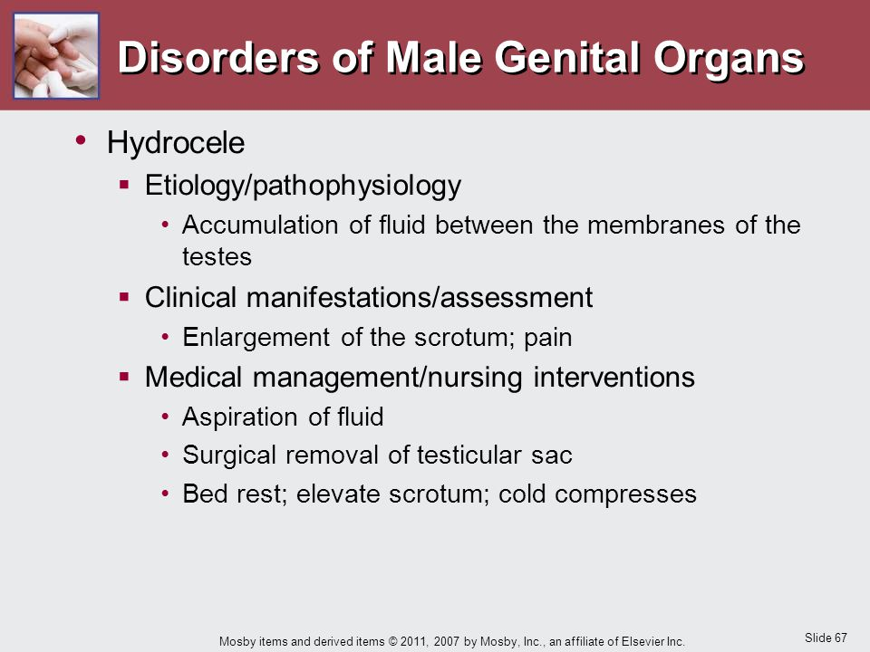 Slide 67 Mosby items and derived items © 2011, 2007 by Mosby, Inc., an affiliate of Elsevier Inc. Disorders of Male Genital Organs Hydrocele  Etiolog