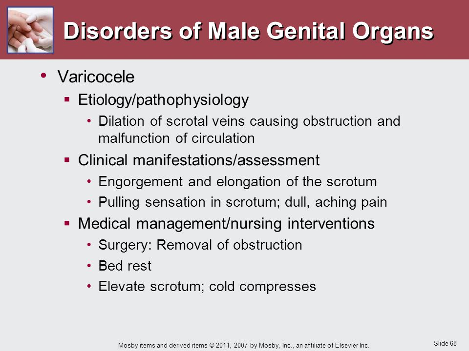 Slide 68 Mosby items and derived items © 2011, 2007 by Mosby, Inc., an affiliate of Elsevier Inc. Disorders of Male Genital Organs Varicocele  Etiolo