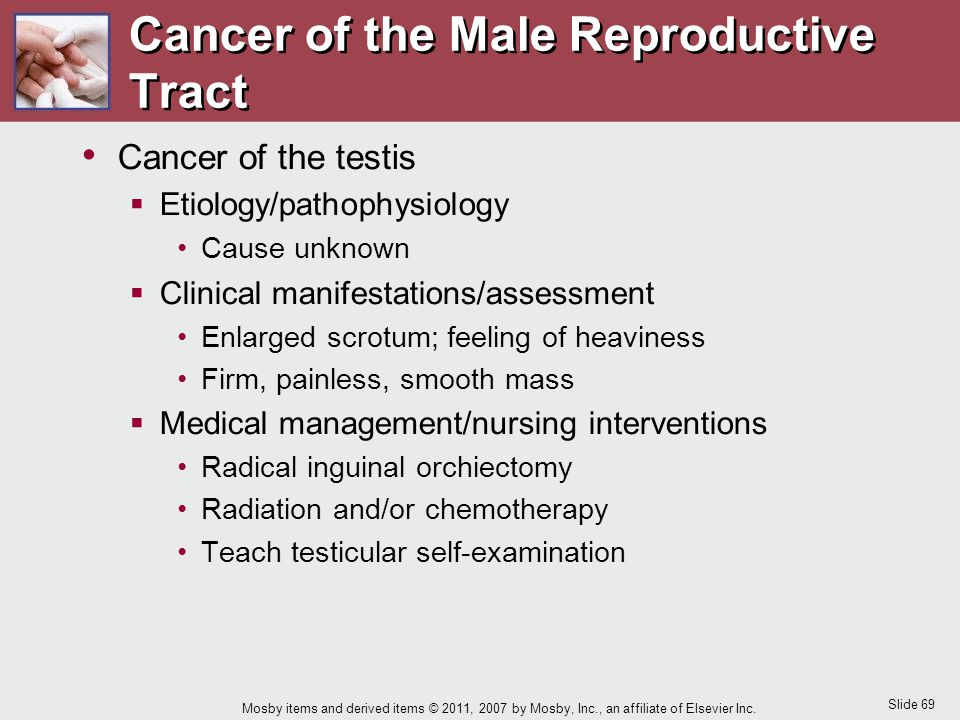 Slide 69 Mosby items and derived items © 2011, 2007 by Mosby, Inc., an affiliate of Elsevier Inc. Cancer of the Male Reproductive Tract Cancer of the