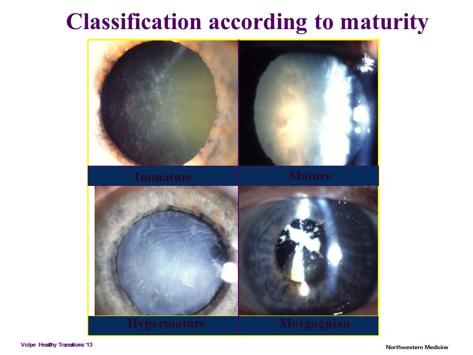 Volpe Healthy Transitions '13 Classification according to maturity Immature Mature HypermatureMorgagnian