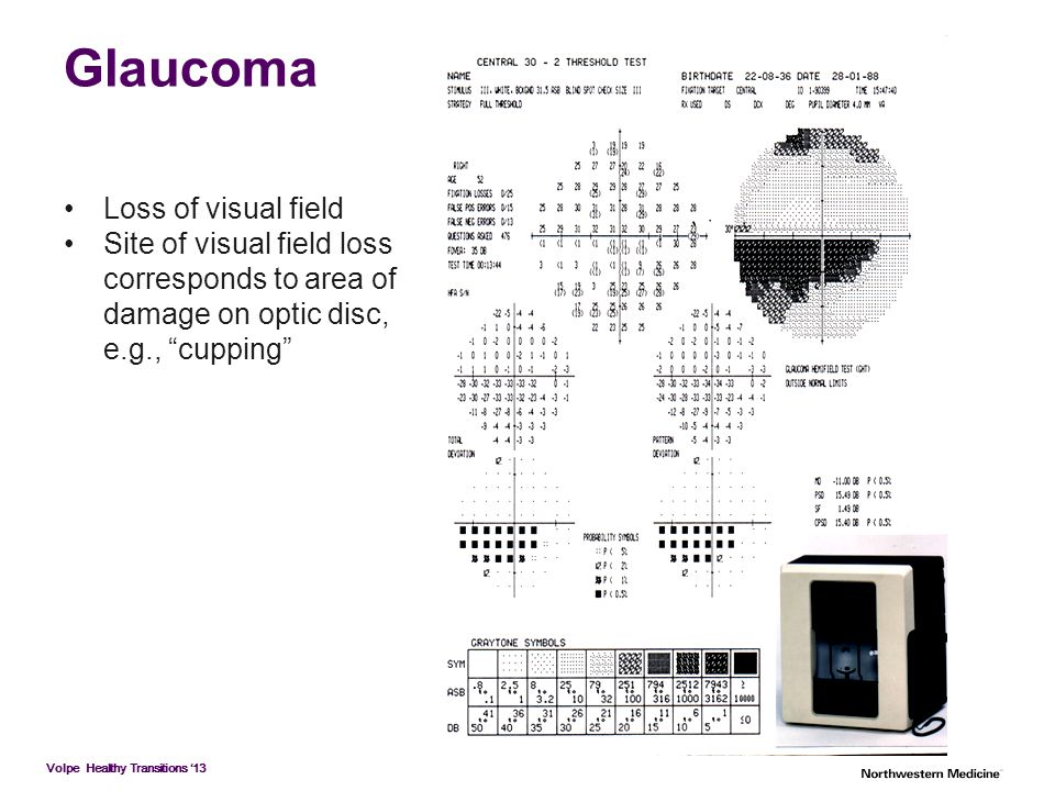"Glaucoma Loss of visual field Site of visual field loss corresponds to area of damage on optic disc, e.g., ""cupping"""