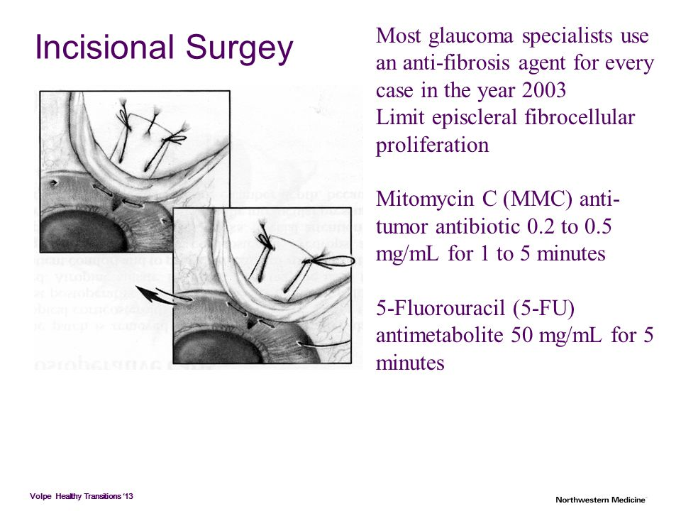 Volpe Healthy Transitions '13 Incisional Surgey Most glaucoma specialists use an anti-fibrosis agent for every case in the year 2003 Limit episcleral